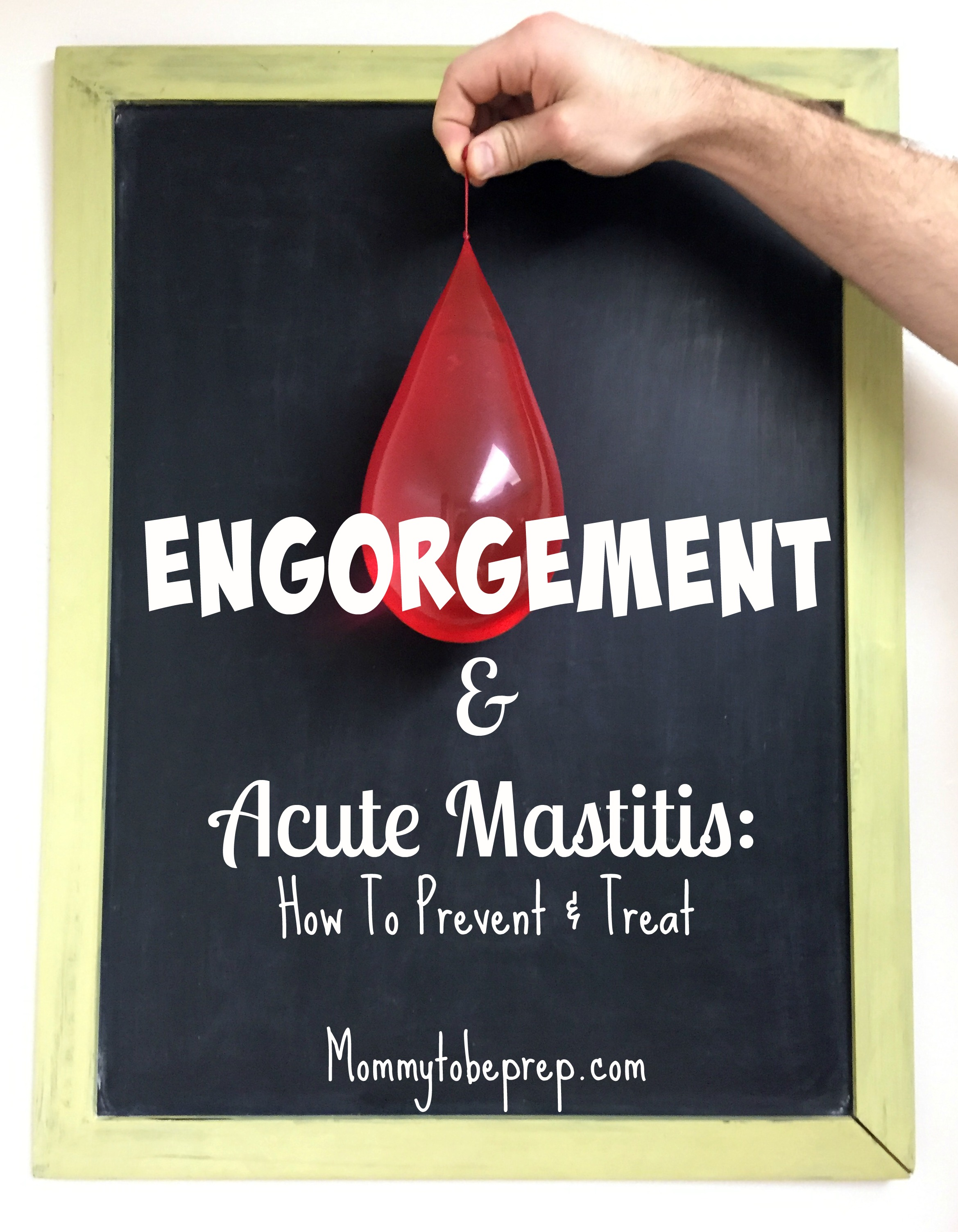 Engorgement & Acute Mastitis: How to Prevent & Treat
