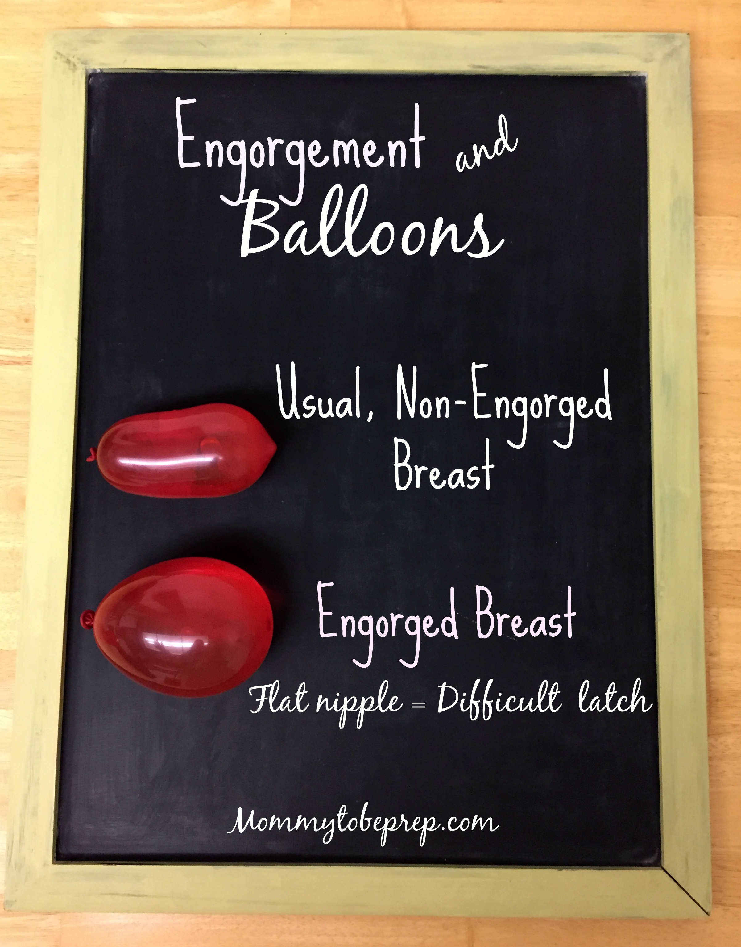 engorgement and balloons